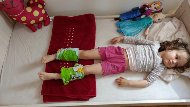 """""""Buộc khăn bắp chân"""" - Phương pháp hạ sốt cho con của mẹ Đức, các mẹ đã biết chưa?"""