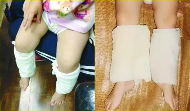 Buộc khăn bắp chân - Phương pháp hạ sốt cho con của mẹ Đức, các mẹ đã biết chưa? - Ảnh 3.